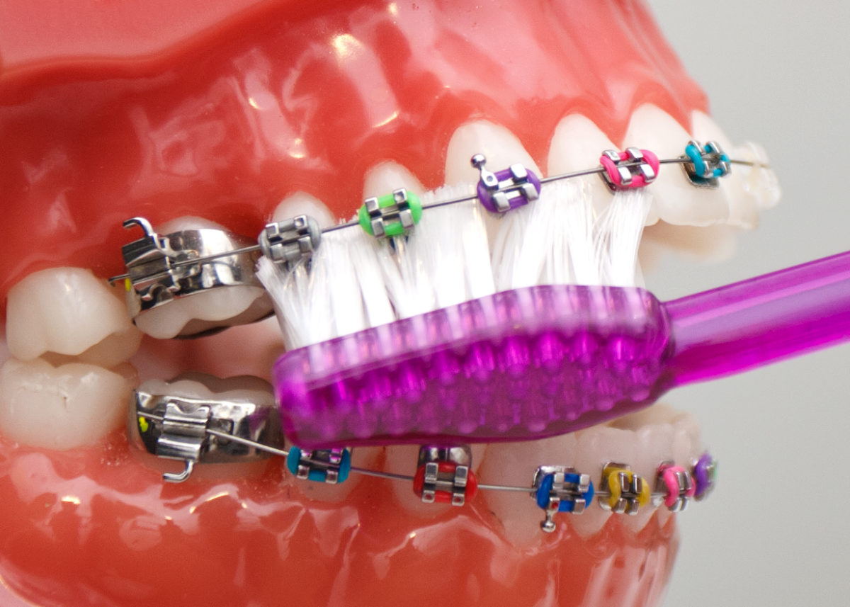 cleaning-with-braces-1200x857.jpg