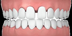 Common teeth problems: gapped teeth.