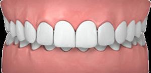 Common teeth problems: overjet.