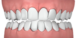 Common teeth problems: Overly crowded teeth.