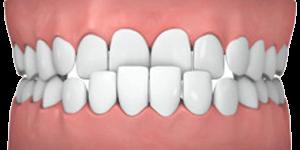 Common teeth problems: Underbite.