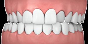 Common teeth problems: Crossbite.